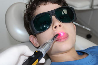 Photobiomodulation (PBM) / Low Level Laser Therapy (LLLT) oral mucositis